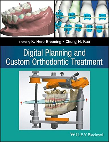 digital-planning-and-custom-orthodontic-treatment