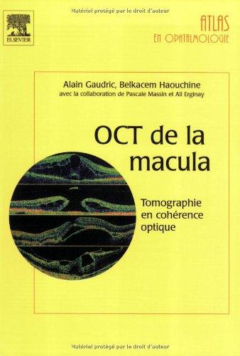OCT de la macula - Tomographie en cohérence optique dans les maladies de la macula