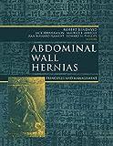 Abdominal Wall Hernias: Principles and Management