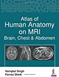 Atlas of Human Anatomy on MRI: Brain, Chest & Abdomen