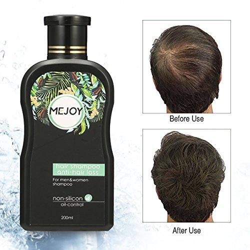 MEJOY Anti-Hair Loss Shampoo Hair Growth Hair Restoration Shampoo for Men and Women, 200ML