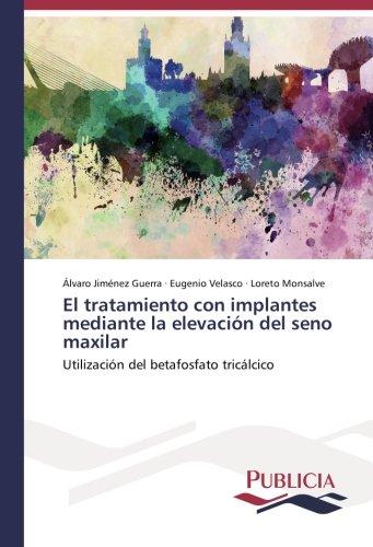 El tratamiento con implantes mediante la elevación del seno maxilar por Jiménez Guerra Álvaro