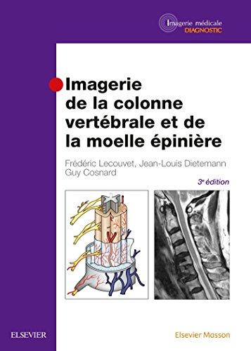 imagerie de la colonne vertébrale et de la moelle Épinière