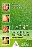 Best Clinique For Acnes - L'acné de la clinique au traitement Review