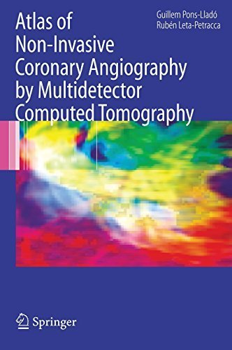 Atlas of Non-Invasive Coronary Angiography by Multidetector Computed Tomography (Developments in Cardiovascular Medicine) (2006-11-02)