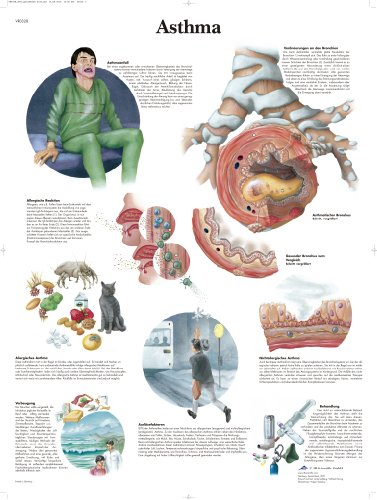 3B Scientific Lehrtafel - Asthma (Medizin Asthma)