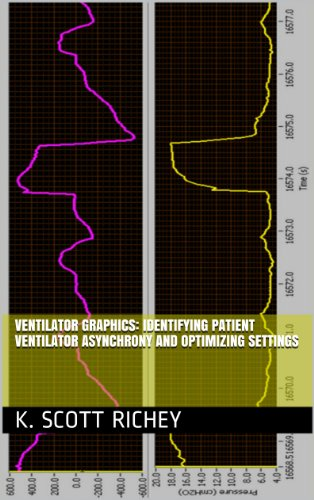 ventilator-graphics-identifying-patient-ventilator-asynchrony-and-optimizing-settings