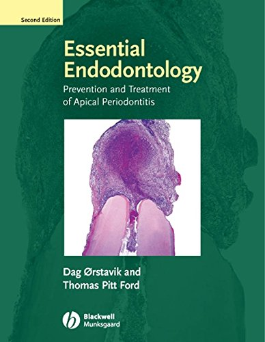 Essential Endodontology: Prevention and Treatment of Apical Periodontitis