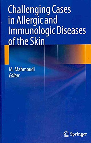 [(Challenging Cases in Allergic and Immunologic Diseases of the Skin)] [Edited by Massoud Mahmoudi] published on (September, 2010)