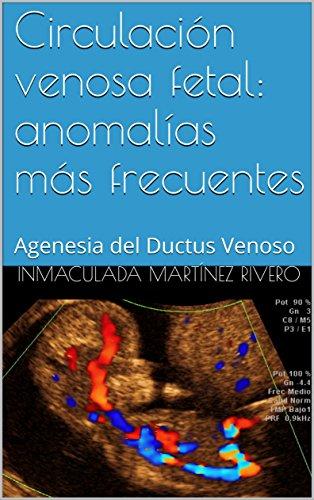 Circulación venosa fetal: anomalías más frecuentes: Agenesia del Ductus Venoso por Inmaculada Martínez Rivero