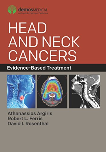 Head and Neck Cancers: Evidence-Based Treatment (English Edition)