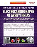 Electrocardiography of Arrhythmias: A Comprehensive Review: A Companion to Cardiac Electrophysiology: Expert Consult - Online and Print