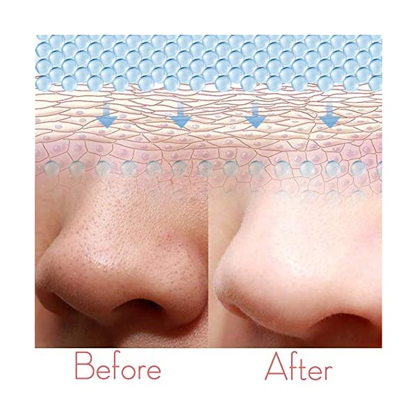 Depurador de piel Ultrasónico,Huasida Peeling Ultrasónico Facial Skin Scrubber Exfoliación Facial Ultrasónica Limpiador de Poros para Limpieza Facial y Cuidado Facial