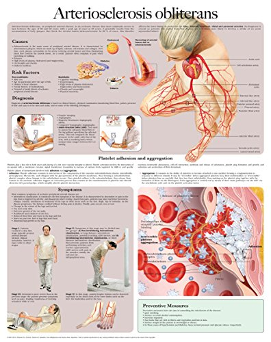Arteriosclerosis obliterans e-chart: Full illustrated (English Edition) (Blood Chart Flow)