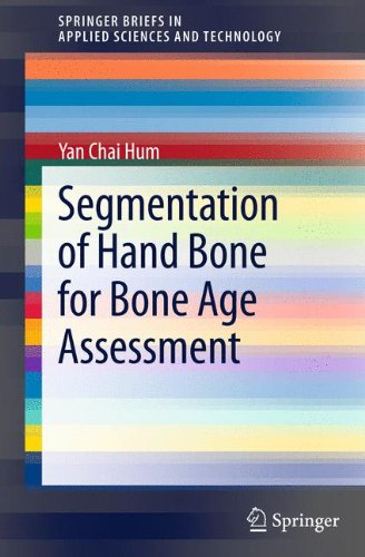 Segmentation of Hand Bone for Bone Age