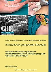 Infiltrationen peripherer Gelenke: Ultraschall und klinisch gesteuerte Infiltrationstechniken am Bewegungsapparat - Gelenke und Wirbelsäule