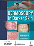 Dermoscopy in Darker Skin