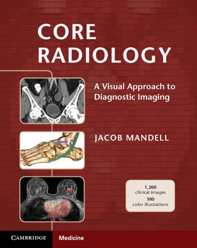 Core Radiology: A Visual Approach to Diagnostic Imaging (English Edition)