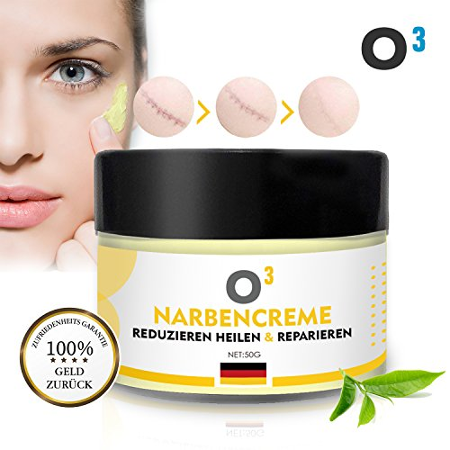 O³ Narbensalbe - Narbencreme 50gr - Stretch Marks Cream - Dehnungsstreifen Creme für Frauen nach Schwangerschaft - Aknenarben Hochwirksam - Scar Cream 100% natürlich