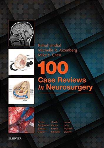100 Case Reviews in Neurosurgery E-Book (English Edition) eBook ...