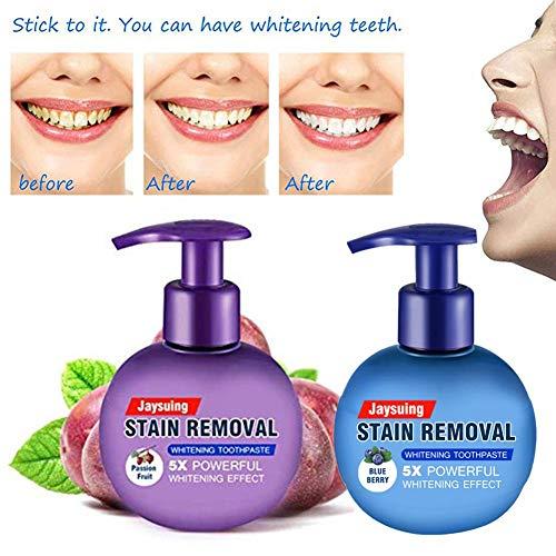 Forwei Whitening Toothpaste,Baking Soda Toothpaste,Teeth Whitening Toothpaste,Intensive Stain Removal Whitening Toothpaste,Strengthening Toothpaste Fight Teeth Bleeding Gums Stain