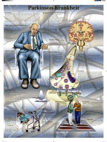 3B Scientific Lehrtafel - Parkinson-Krankheit