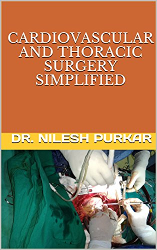 cardiovascular and thoracic surgery simplified (English Edition)