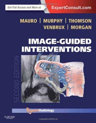 Image-Guided Interventions: Expert Radiology Series (Expert Consult - Online and Print), 2e by Mauro MD FACR, Matthew A. Published by Saunders 2nd (second) edition (2013) Hardcover