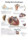 3B Scientific Lehrtafel - Häufige Herzerkrankungen