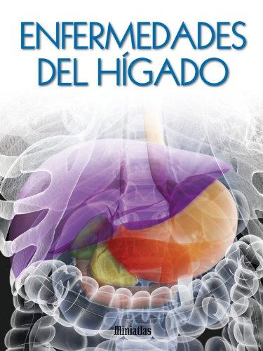 Descargar Libro Miniatlas Enfermedades del hígado de Luis Raúl Lépori