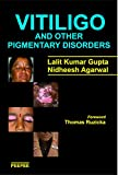 Vitiligo and Other Pigmentary Disorders