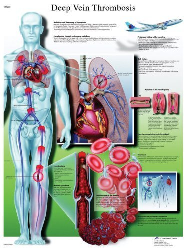 3B Scientific Deep Vein Thrombosis Chart Laminated Version by 3B Scientific