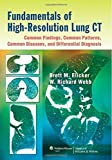 Fundamentals of High-Resolution Lung CT: Common Findings, Common Patterns, Common Diseases, and Differential Diagnosis 1