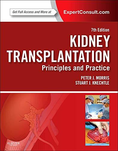Kidney Transplantation - Principles and Practice: Expert Consult - Online and Print, 7e por Stuart J. Knechtle MD  FACS
