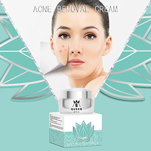Clear Skin Behandlung Serum (Anti Akne Creme von B QUEEN - Absorbiert schnell mit hoher Penetrationsfähigkeit. Macht die Haut hell, sauber und geschmeidig. - Anti-Akne-Behandlung 50g)