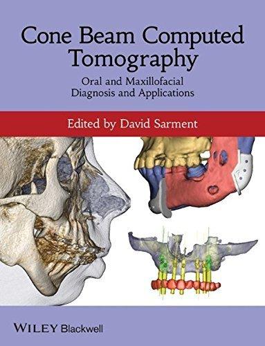 Cone Beam Computed Tomography: Oral and Maxillofacial Diagnosis and Applications (2013-12-13)