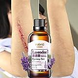 Allbesta Scar Repair Serum Lavender Essence Essential Oil Skin Care Natural Pure Remove Acne Burn Stretch Marks Removal 10ML