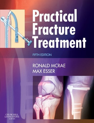 Practical Fracture Treatment, Fith Edition by Ronald McRae (2008-04-08)