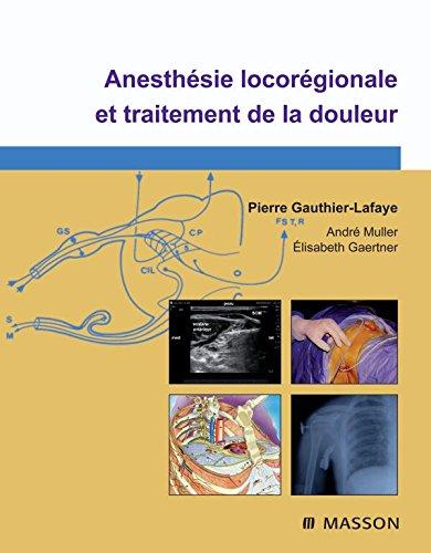 Anesthésie locorégionale et traitement de la douleur (Ancien Prix éditeur : 125 euros)