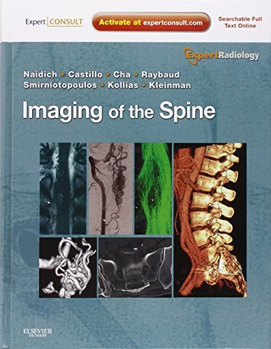 Imaging of the Spine: Expert Radiology Series, Expert Consult-Online and Print, 1e by Thomas P. Naidich MD (2010-09-01)