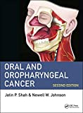 #8: Oral and Oropharyngeal Cancer, Second Edition