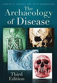 The Archaeology of Disease by [Roberts, Charlotte, Manchester, Keith]