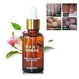 Leegoal nail treatment Essence chiodo nutrizione olio sbiancante per unghie e piedi toe nail Fungus rimozione anti-fungini infezione