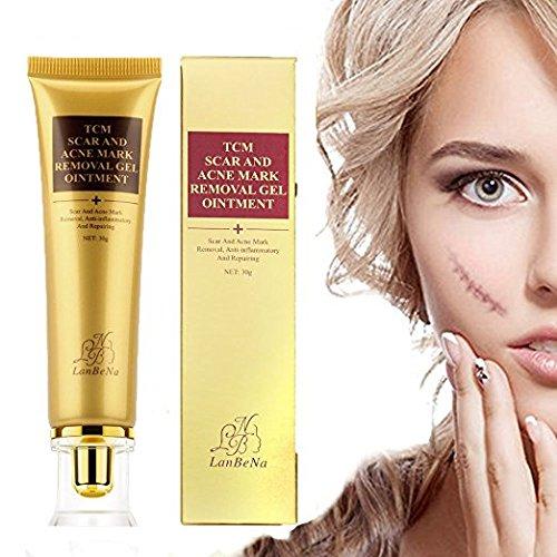 Frau Dear Akne Narbe entfernen creme, Skin Repair Cream Narbe Creme Gel Narben Behandlung für Gesicht und Körper Narbe Akne Spots Dehnungsstreifen 30ml