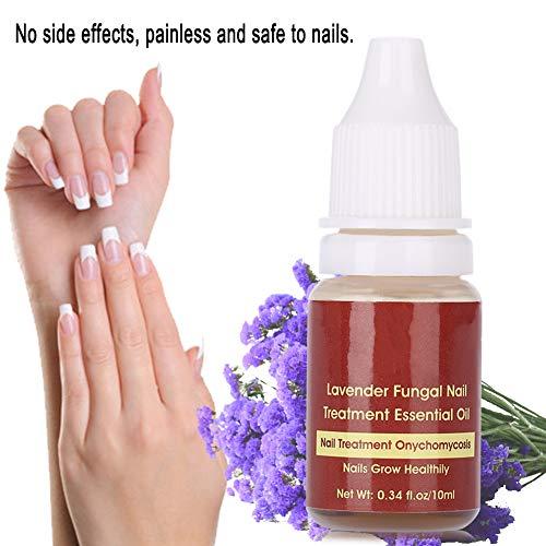 Nägel ätherisches Öl, Essenz Nagelpflege, pflegendes Nagelöl, Anti Pilz Nagelöl, pflegendes Lavendel Nagelöl, Fußpflegende Fußpflege