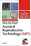 Step By Step Assisted Reproductive Technology(Art) With 2 Int.Dvd-Roms Dr.Malhotra Series