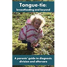 Tongue tie: breastfeeding and beyond. A parents' guide to diagnosis, division and aftercare.