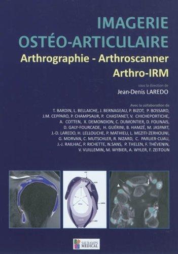 Imagerie ostéo-articulaire : Arthrographie, arthroscanner, arthro-IRM