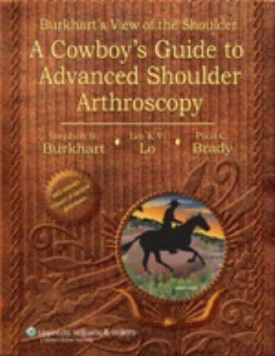 Burkhart's View of the Shoulder: A Cowboy's Guide to Advanced Shoulder Arthroscopy by Stephen S. Burkhart (2006-03-01)