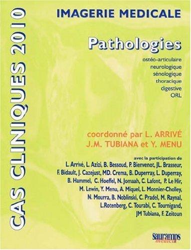 Imagerie médicale : Pathologies